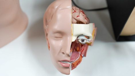 Second full face Transplant. World-first in Paris