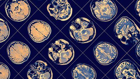 Deep brain stimulation for Parkinson's disease, a French neurosurgeon honored.