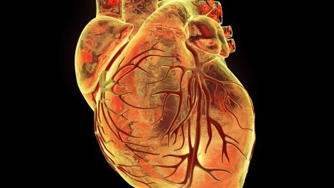 Cardiology : Heart valve replacement without cracking open the chest
