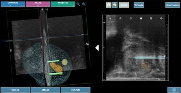 Prostate cancer: first use in the world of technology guided tumor ablation Nanoknife® 3D Embedded imaging outpatient